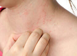 Eczema - itchy, irritated, inflamed skin
