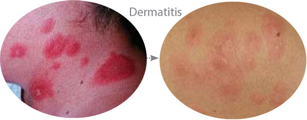 Before & After Photo showing improvement in Dermatitis using McArthur Skincare