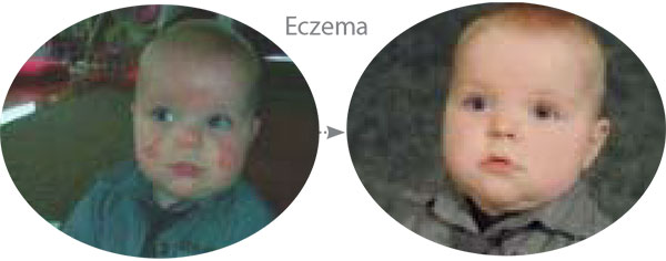 Before & After Photo showing improvement in Eczema using McArthur Skincare