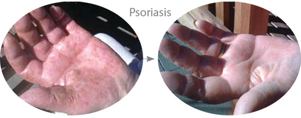 Before & After Photo showing improvement in Hand Psoriasis using McArthur Skincare