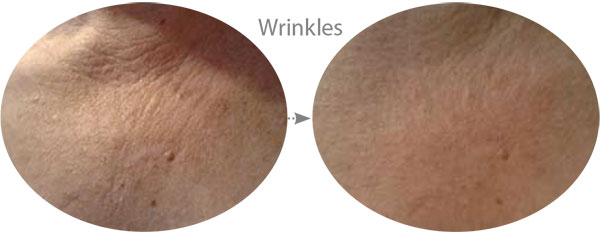 Before & After Photo showing improvement in Wrinkles using McArthur Skincare
