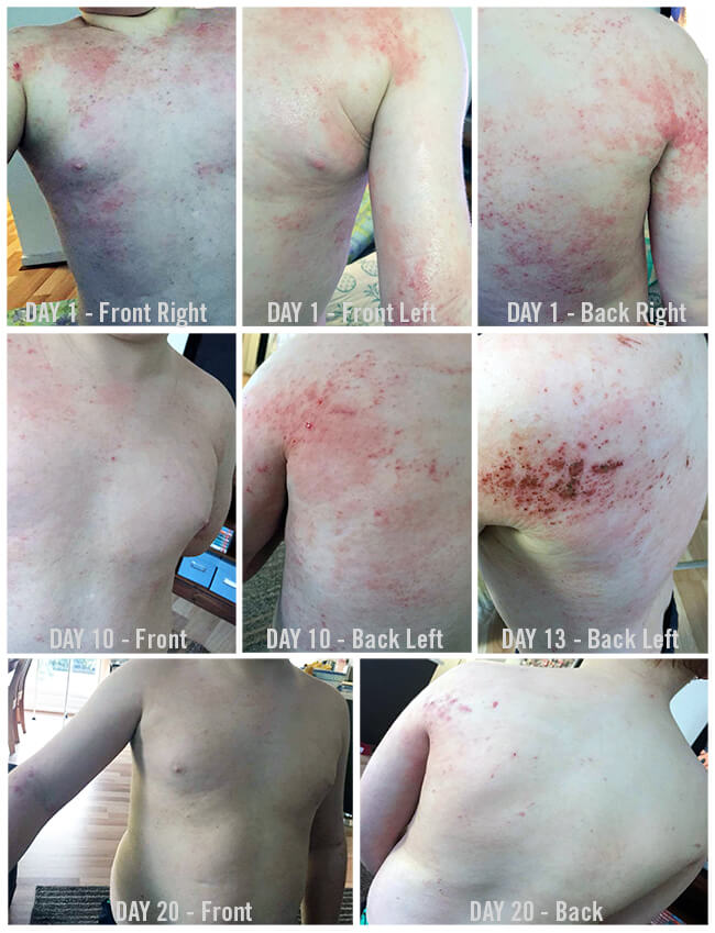 Before and After Photo of a nine year old boy suffering Eczema