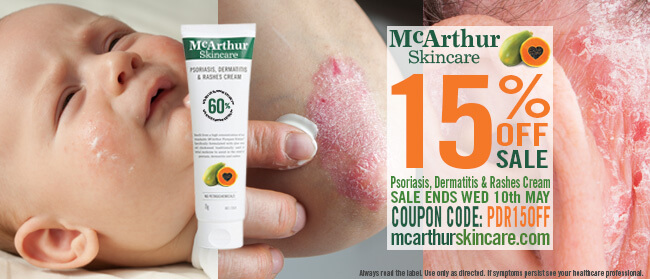 Psoriasis, Dermatitis & Rashes Cream Now on Sale!